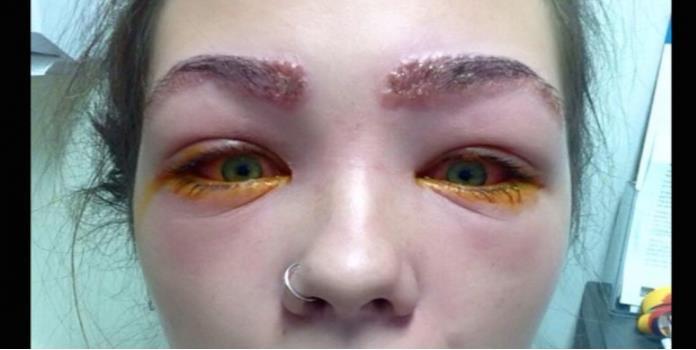 Se tiñe las cejas y casi pierde la vista