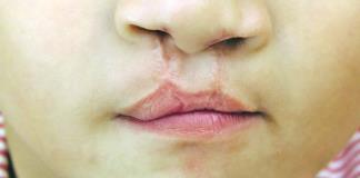Invitan a cirugías de labio leporino