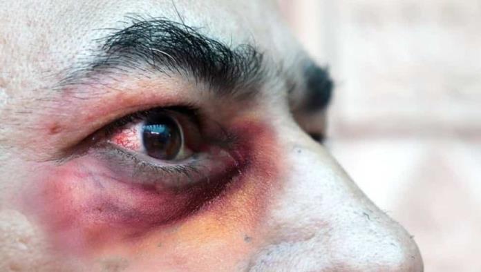 Detectan hongo negro letal en paciente con COVID-19 en Uruguay