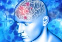 Novedoso examen podría detectar el Alzheimer 10 años antes de ser diagnosticado