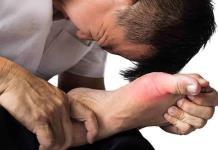 Atienden a pacientes  con Artritis Gotosa