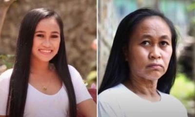 Raizel Calago: Tiene 16 años y parece de 50; sufre un trastorno genético